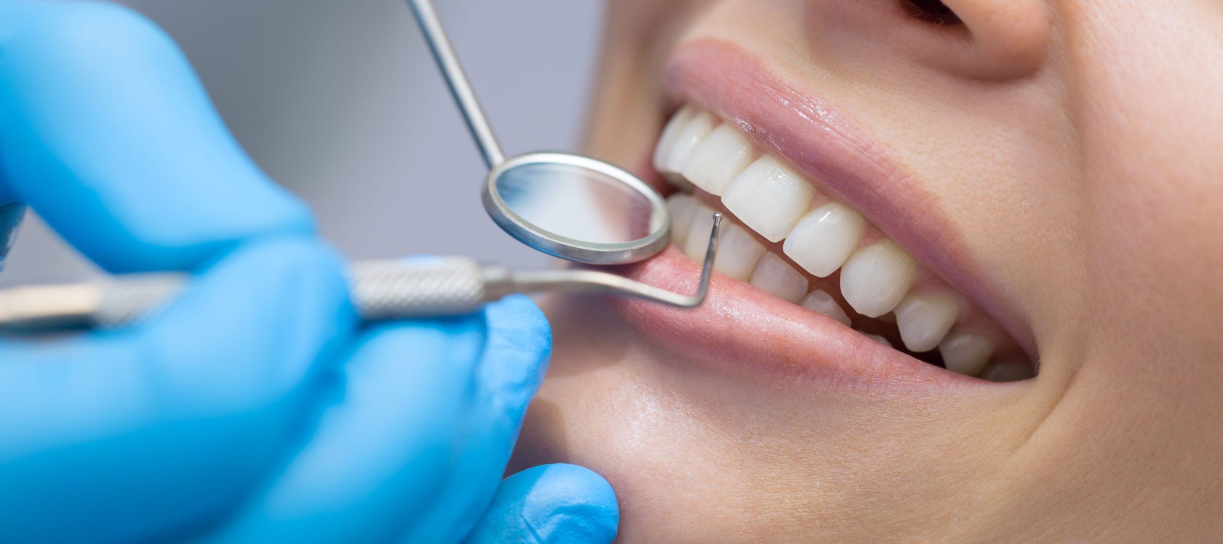 Darauf müssen Sie bei der Zahnzusatzversicherung achten